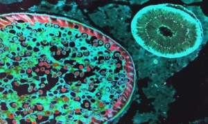 Пути заражения аскаридозом