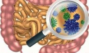 Чем опасен дисбактериоз кишечника