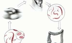 Пути заражения энтеробиозом
