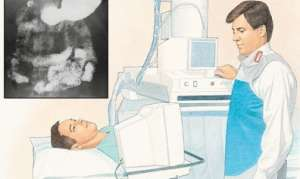 Длительность лечения гастрита