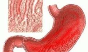 Типы и группы гастрита в желудке