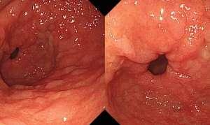 Патогенез хронического гастрита и этиология заболевания