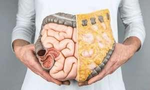 Каловые камни в кишечнике