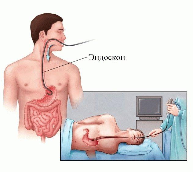 Диагностика язвенной болезни желудка и двенадцатиперстной кишки Врач диагностирует язву у пациента