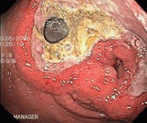 Прободение язвенной болезни