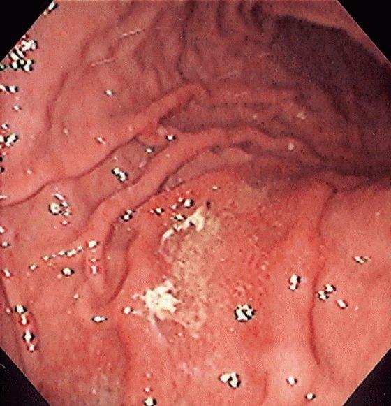 Лечение гастрита отзывы больных и врачей