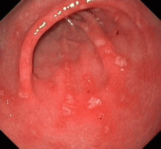 Гастрит и язва желудка: каковы симптомы и чем можно