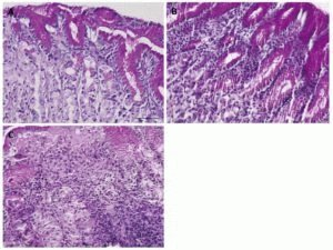 Отмирание клеток слизистой желудка