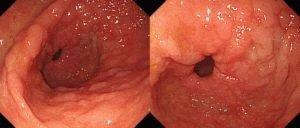 Воспаление желудка с наростами