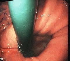 Слизистая эпигастрия