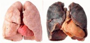 Проблемы с лёгкими у курильщика