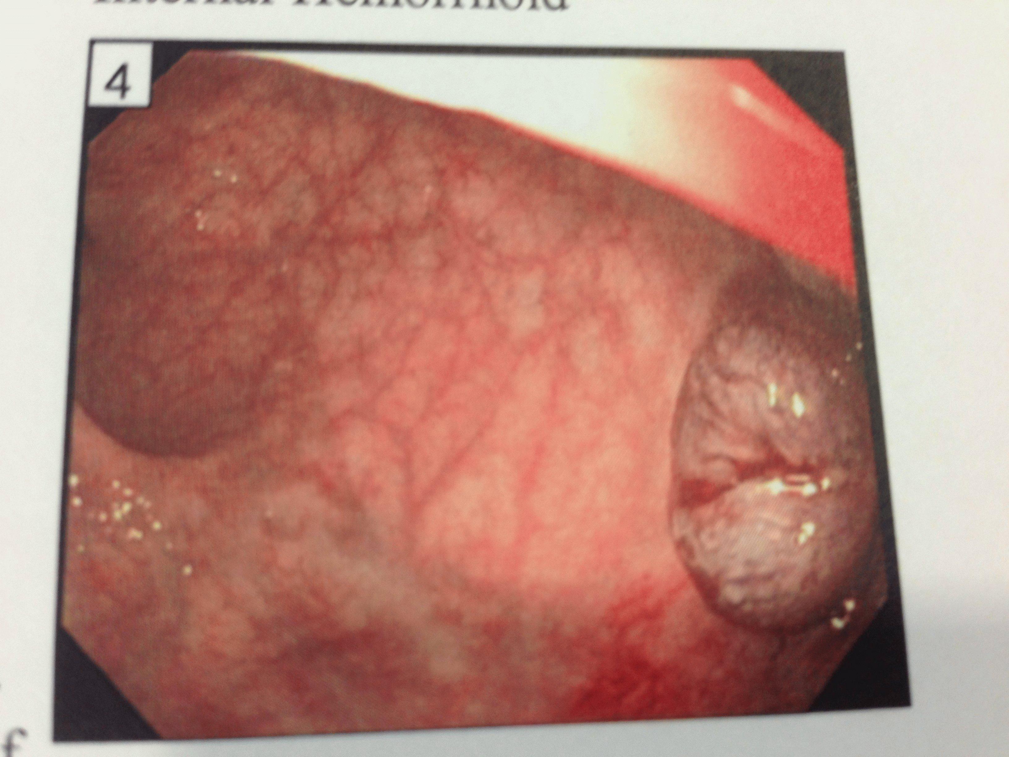 клиника лечения кашля и аллергии оленевой