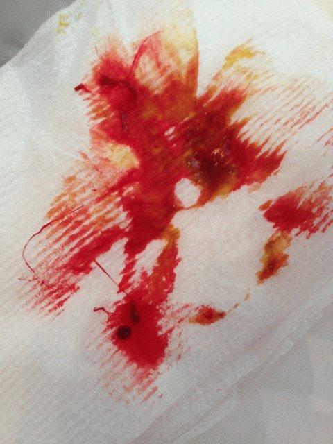 Что делать если геморрой кровоточит