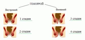 Хронический кровоточащий геморрой лечение