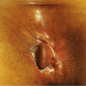 Геморройные узлы