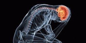 Неврологическое расстройство