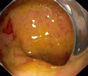 Хронический стронгилоидоз