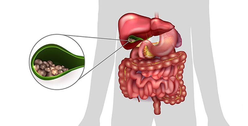Холецистит безжкаменный лечение