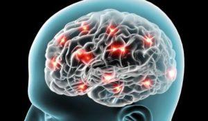 Сбой кровотока мозга