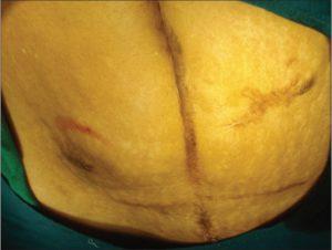 Метод лапаротомии по Черни