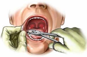 Работа стоматолога по удалению зуба