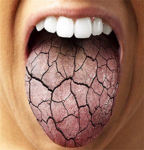 Сухость во рту