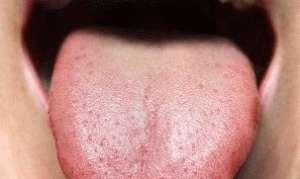 Привкус во рту при панкреатите