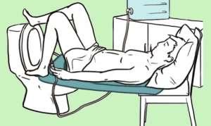Клизма для похудения в домашних условиях