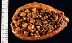 От чего образуются камни в желчном пузыре