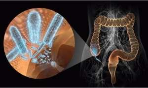 Причины, симптомы и лечение дизентерии у взрослых