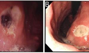 Признаки и лечение открытой язвы желудка