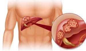 Парентеральные гепатиты