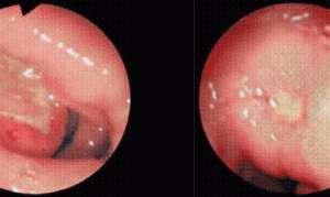 Патогенез и терапия каллезной язвенной болезни желудка