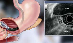 Как проводится эндосонография