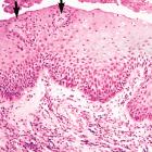Билиарный рефлюкс-эзофагит