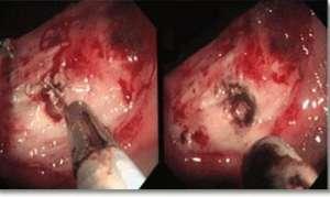 Причины и развитие язвы желудка и 12-перстной кишки