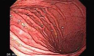 Пангастрит (распространённый хронический гастрит)