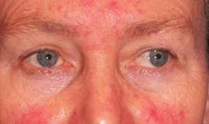Бактерия хеликобактер пилори и высыпания на коже