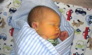 Желтушка у новорождённых