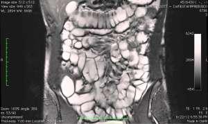 МРТ кишечника или колоноскопия