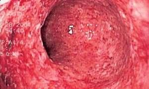 Колит кишечника