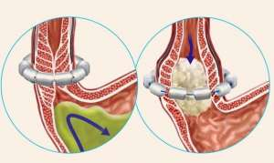 Дискинезия пищевода