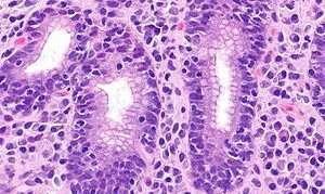 Лимфоцитарный гастрит