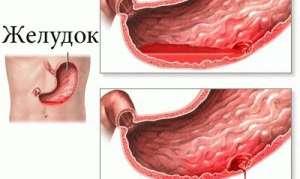 Симптомы и лечение прободной (перфоративной) язвы желудка