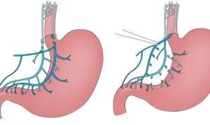 Техники селективной и стволовой ваготомии