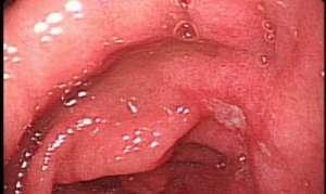 Патогенез и терапия пептической язвенной болезни желудка