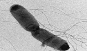 Пищевые отравления микробного происхождения