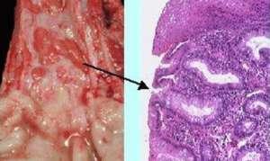 Степени рефлюкс-эзофагита