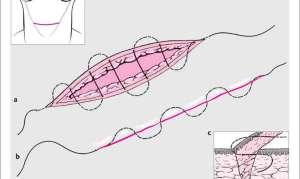 Нижнесрединная лапаротомия