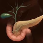 Причины панкреатита и этапы развития заболевания